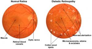 diabetic-retinopathy-large[1]